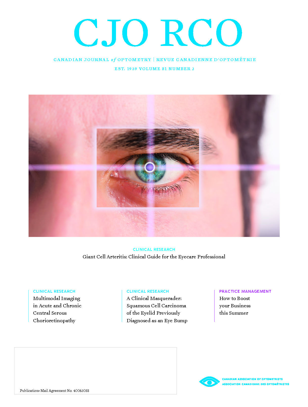 Cover of CJO Volume 79 Number 4 - Shows image of Topographical map corneal opacities present centrally in the left eye